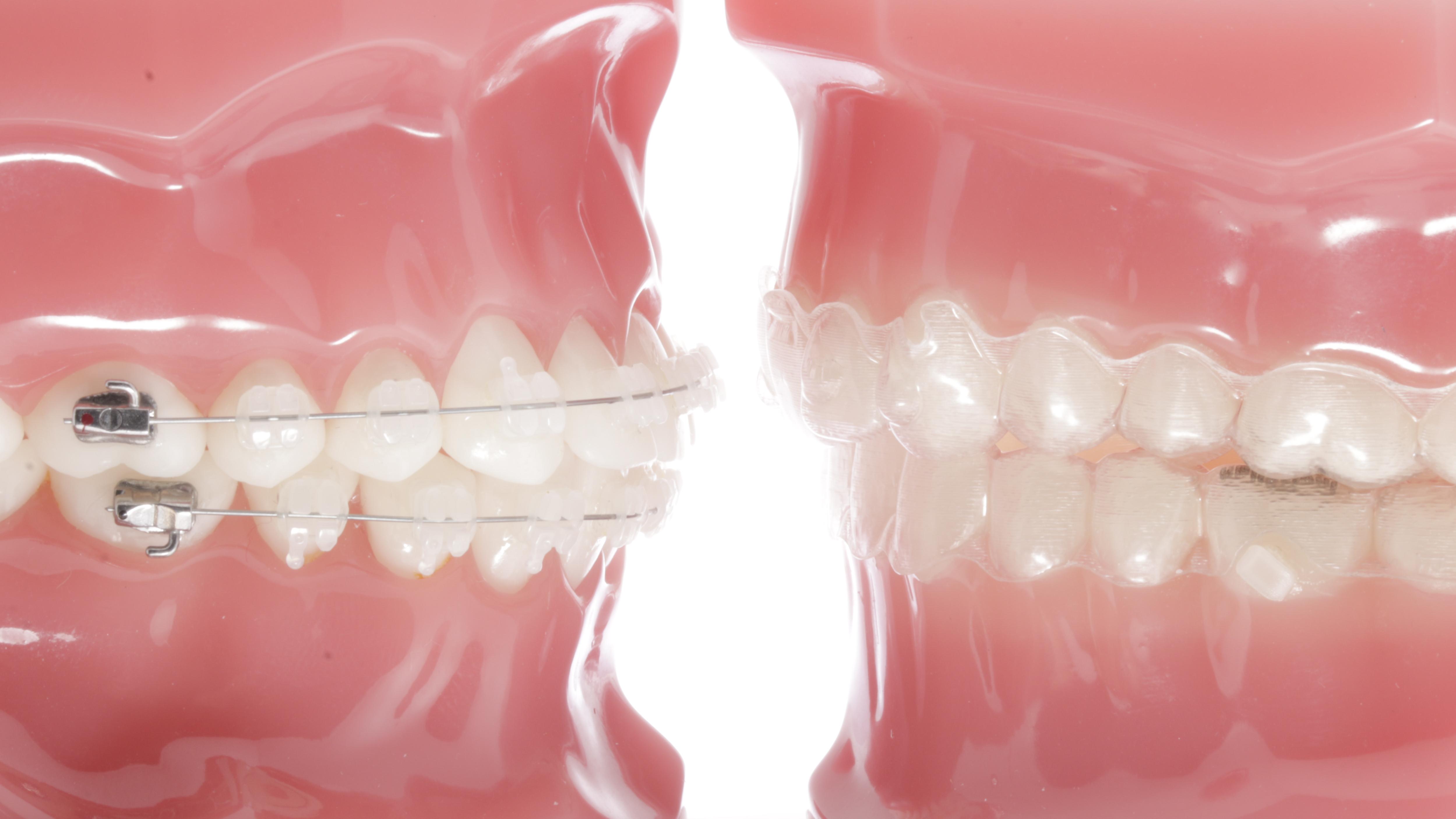 2.cbe.ortodoncia